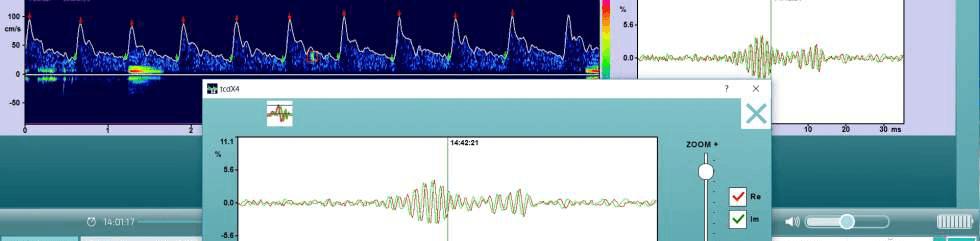 Embolie Detection Software